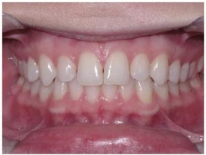 Step 1 - Frontal Intraoral Photo